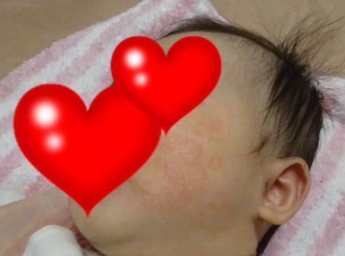 ファムズベビー 乳児湿疹 口コミ レビュー